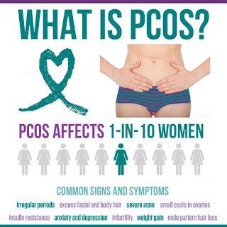 1 dari 10 wanita menderita PCOS