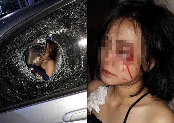 Foto Cewek Cantik Berlumur Darah Korban Pelemparan Batu Yang Hebohkan Netizen