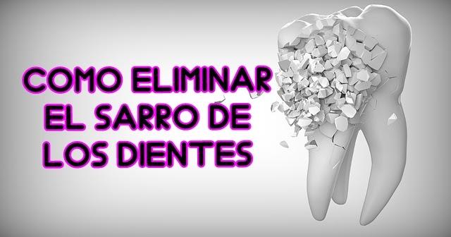 Como eliminar el sarro de los dientes en casa trucos y consejos blog de belleza - Eliminar sarro en casa ...