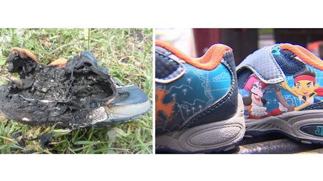 Setelah Lihat Foto Mengerikan ini, Masih Mau Belikan Sepatu Berlampu Buat Anak?
