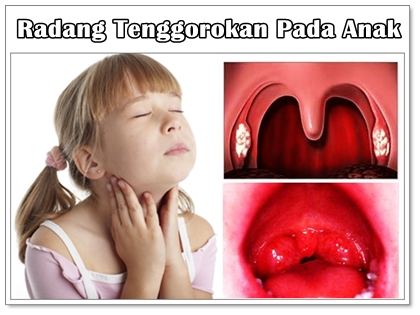 antibiotik radang tenggorokan pada anak