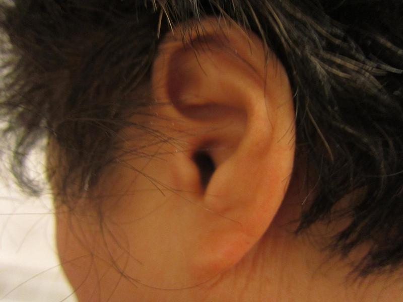 zaburzenia-słuchu