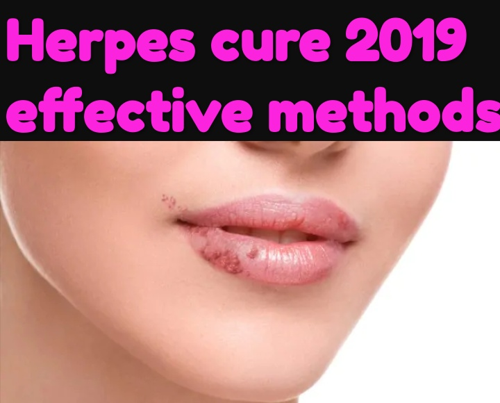 Healthcare & Health solution: herpes Cure 2019 Known