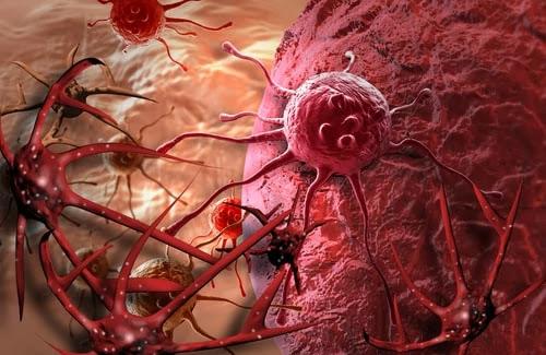 Cancer - Ayurveda Treatment