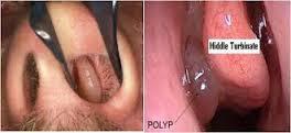 perbedaan polip hidung dan sinusitis