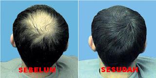 Obat Penumbuh Rambut Di Apotik