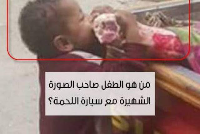 تعرف على قصة صورة طفل 'اللحمة'التي  أحزنت الكثير  صورة أبكت كل من شاهدها..هذا ما وصلت اليه احوال بعض الفقراء!