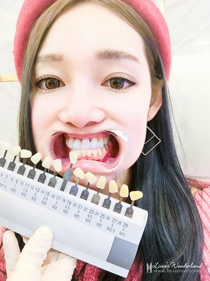 美齒過程-牙齒美白推薦