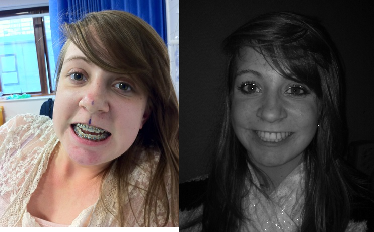 EmBracing Upper and Lower Jaw Surgery: Day 143- 24 hours ...