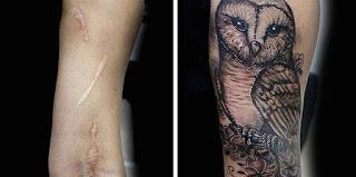 tatuaje cicatriz brazo