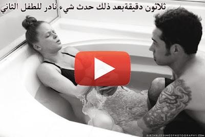 فيديو حالة ولادة نادرة لتوأم لا تحدث إلا مرة واحدة