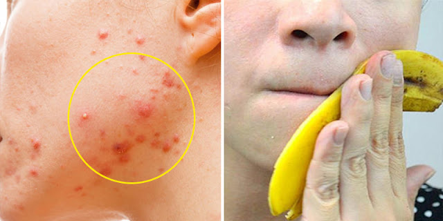Use Banana Peel 2 Times A Day And Remove Acne Within 7 Days!