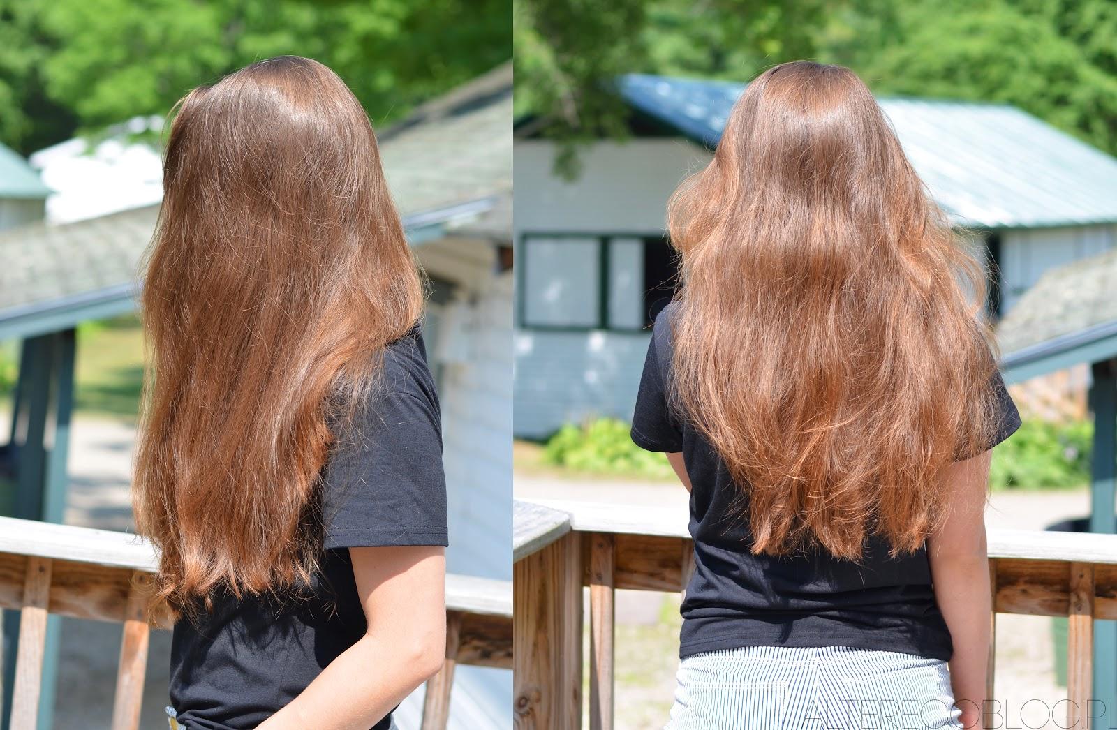 wypadanie włosów lipiec