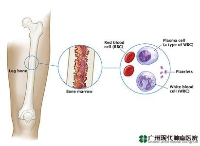 Kanker Multiple Myeloma