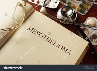 Mesothelomia Prevention and assistance law