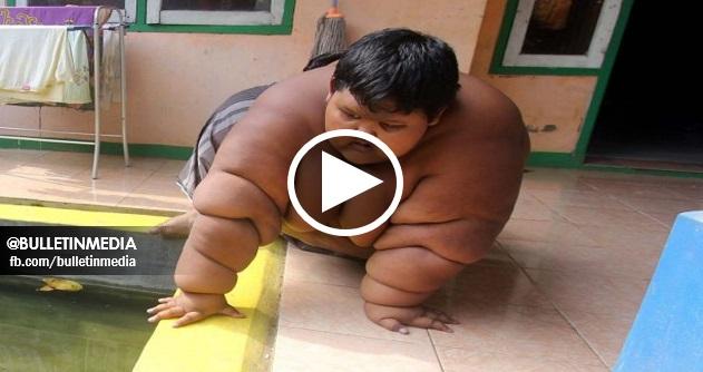 [VIDEO] Budak 'Tergemuk di Dunia' Dipaksa Berdiet Untuk Selamatkan Nyawanya