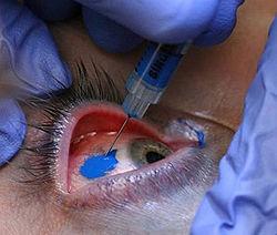 Scleral Tattoo in eye, eye tattoo gone wrong
