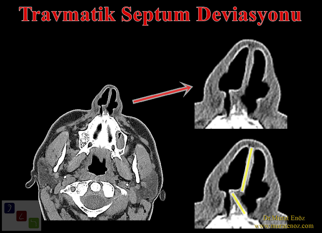 Traumatic septum deviation - Traumatic nasal septum fracture - Nasal septum deviation operation - Septoplasty operation - Nasal septum deviation correction surgery - Bone spur formation