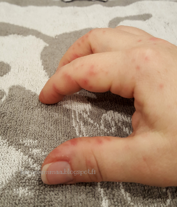enterorokko tarttuminen taudin jälkeen