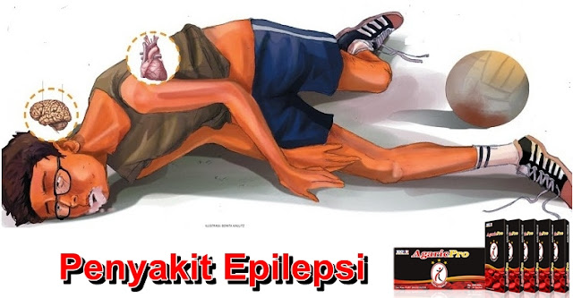 Obat Herbal Epilepsi Anak dan Dewasa