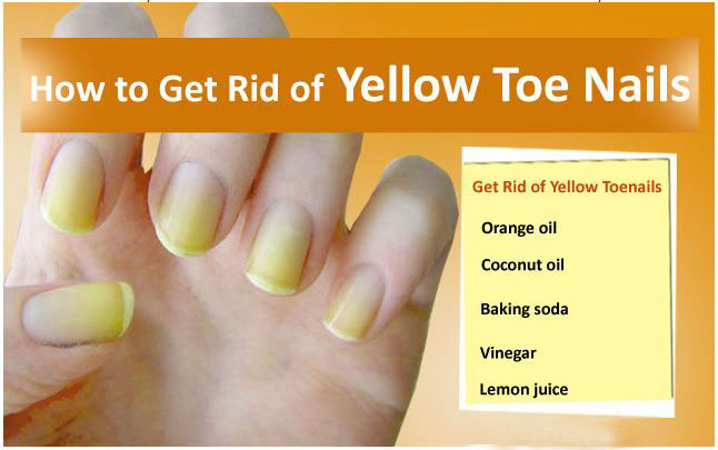How to Get Rid of Yellow Nails with Effective Home Remedies | Arbkan