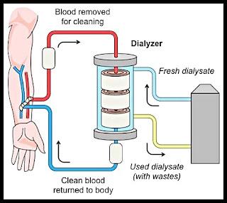 Bagaimana cara kerja alat cuci darah ( hemodialisa ), ini penjelasannya 8