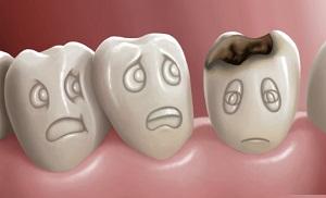 14 Cara Mengobati Sakit Gigi Berlubang Dengan Bahan Alami Yang ... fdf3e5d944