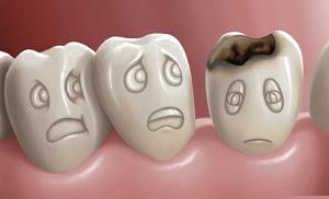 14 Cara Mengobati Sakit Gigi Berlubang Dengan Bahan Alami Yang Sangat mMdah dan Terbukti Ampuh