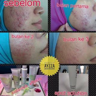 Set jerawat dan set sensitif skin