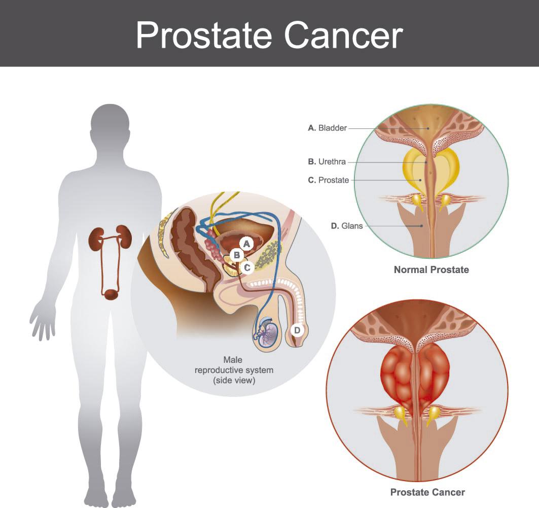 radioterapia prostática y dolor óseo