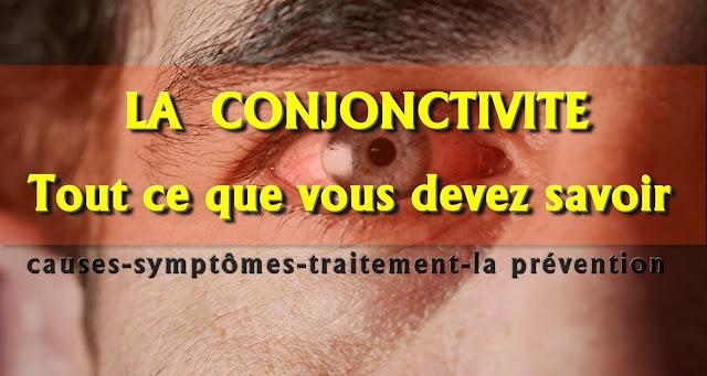 Tout ce que vous devez savoir sur la conjonctivite