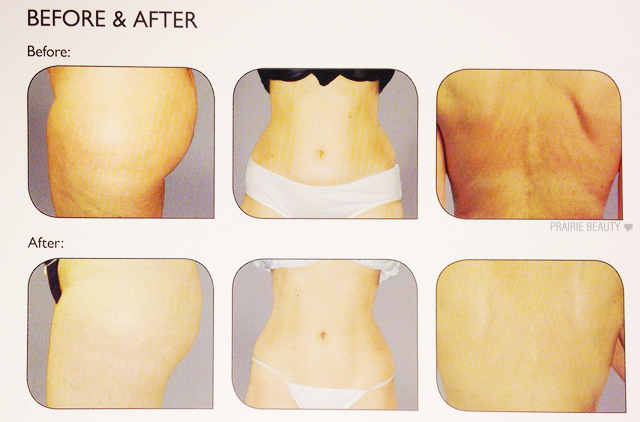 Silhouette cellulite reduction and body contouring