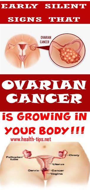 7 Signs Of Ovarian Cancer You Might Be Ignoring#NATURALREMEDIES