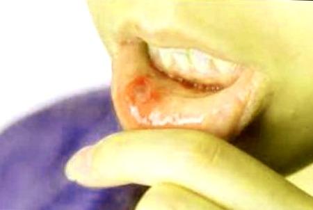 aloe vera y las ulceras bucales