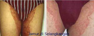 https://obatkhususgatal.blogspot.com/2017/07/obat-khusus-gatal-infeksi-jamur.html