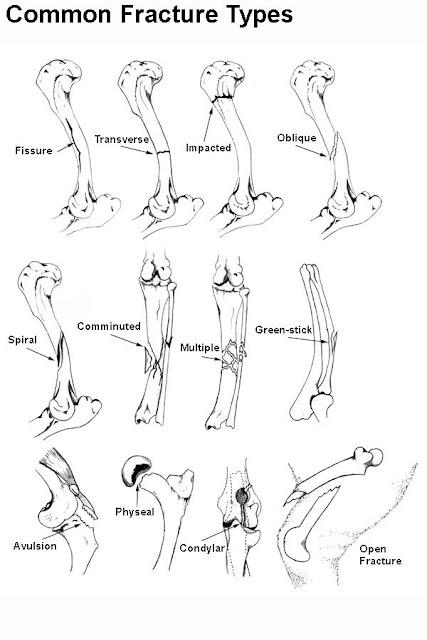how do broken bones heal