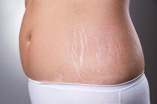 Menghilangkan bekas luka dengan ramuan alami