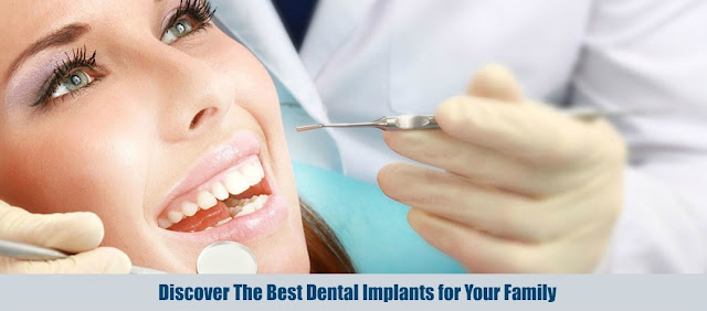 Discover The Best Dental Implants for Your Family