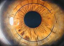 2011 ~ Oftalmologia e Saude Ocular 5248cf0e0a