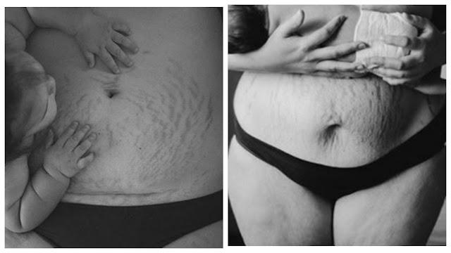 Какая есть: женщины делятся честными снимками после родов