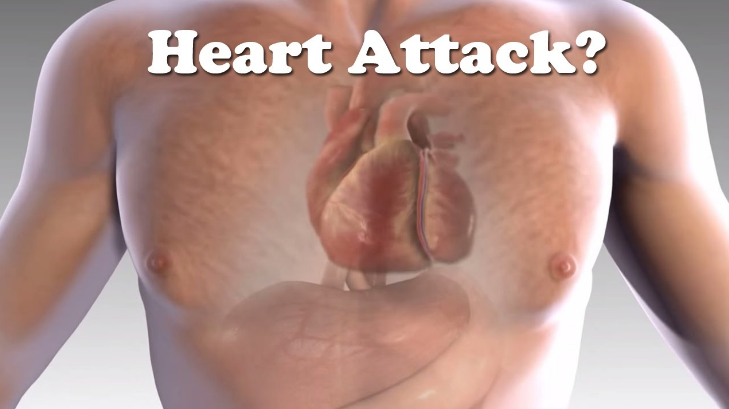 4 Warning Signs of a Heart Attack You Must Know