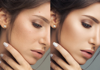 5 Effective Natural Ways To  Detox Your Blood and Be Free From Skin Issues