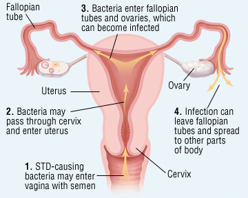 Sexually transmitted infections sti screenings for ovarian