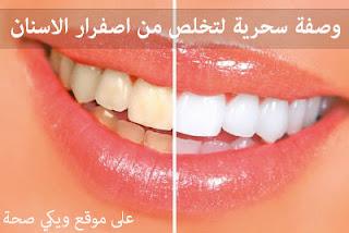 وصفة سحرية لتخلص من اصفرار الاسنان