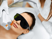 Cara menyembuhkan bekas jerawat dengan terapi laser