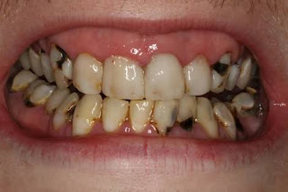 TOOTH DECAY: HELP YOURSELF TODAY