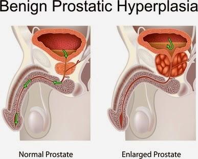 Cialis E Malattie Cardiovascolari » Top1 Canadian Pharmacy - Prostatitis Plodnost