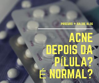Acne depois da pílula? É normal?