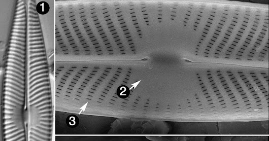 Diatom of the Month – May 2017: Navicula lanceolata