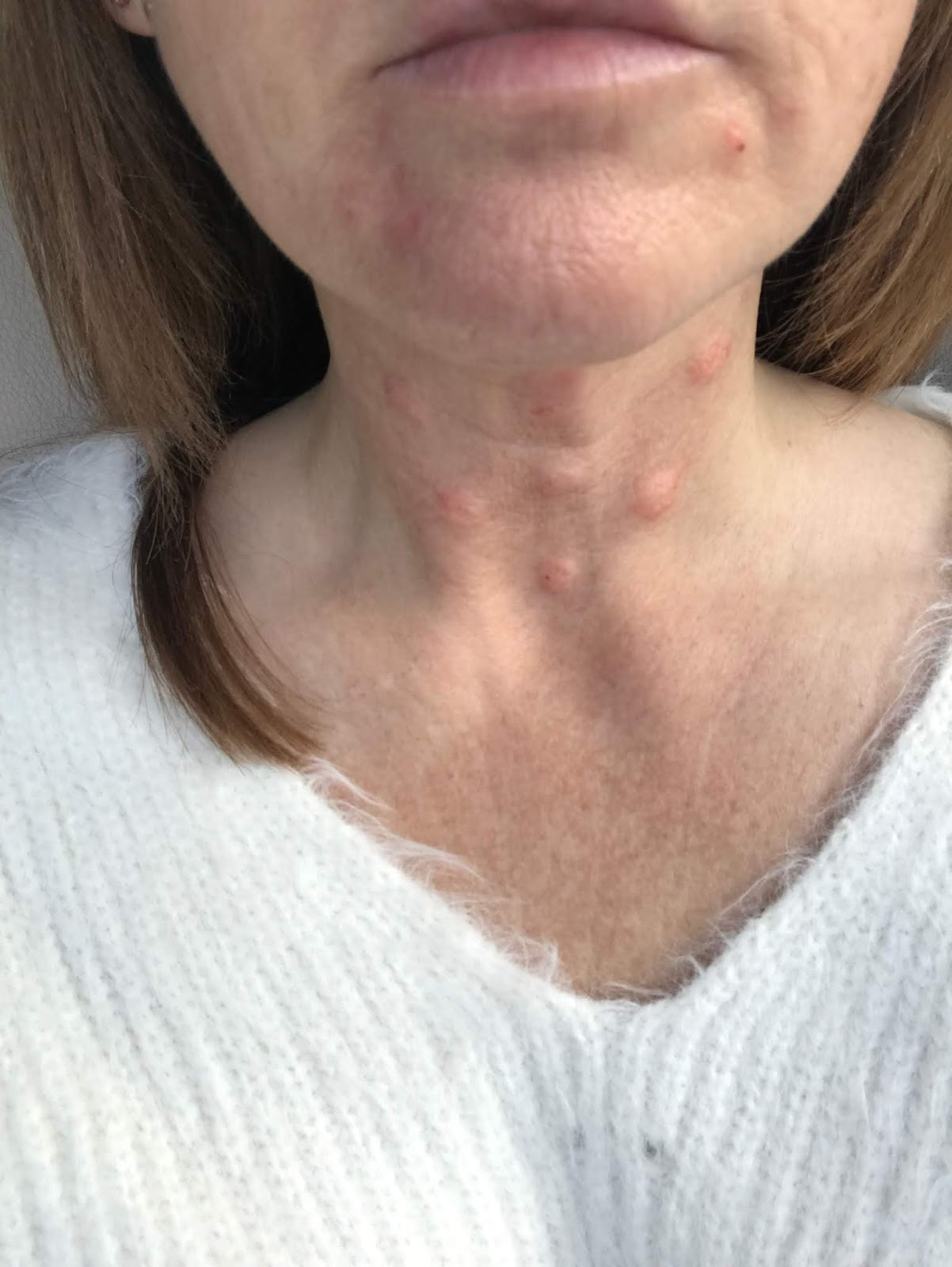 Picture of neck immediately after Profhilo injections